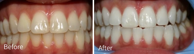 Before and after treatment with crowns
